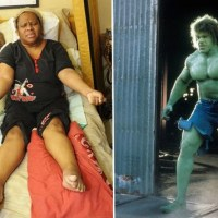 """""""I swell up like the Incredible Hulk"""": Woman's muscles bulge and body balloons during anger attacks"""