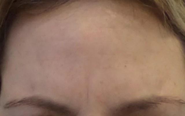 Botox Stirnfalten Zornesfalte Vorher-Nachher-Bild