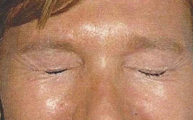 Lachfalten Botox Vorher-Nachher-Bild