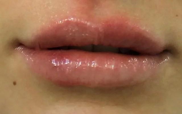 Lippen Botox Hannover Vorher-Nachher-Bild