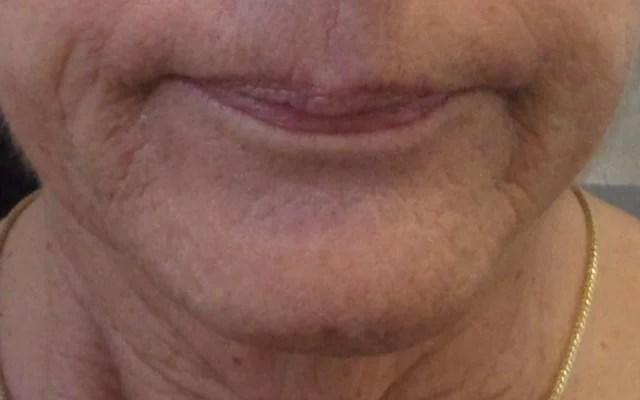 Botox Erdbeerkinn Vorher-Nachher-Bild