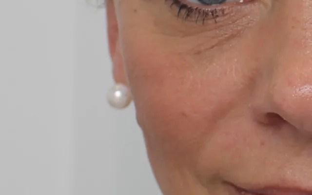 Augenringe aufspritzen Hannover Nasolabialfalte Vorher-Nachher-Bild