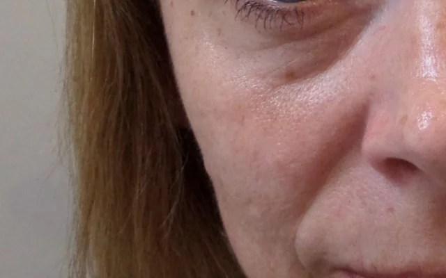 Nasolabialfalte Hyaluron Augenringe aufspritzen Vorher-Nachher-Bild