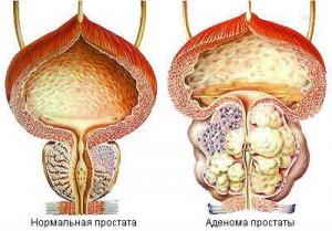 исход хронического простатита
