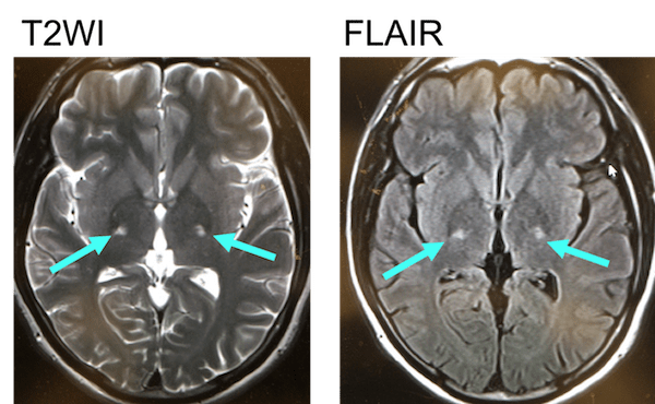 ALS mri findings