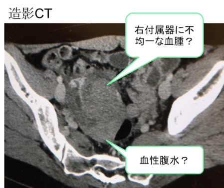rupture of ovary Ct findings