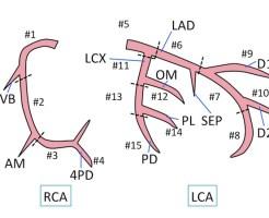 coronal artery anatomy2
