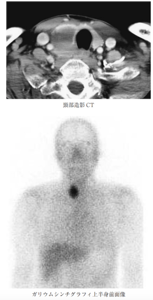Ga scinti thyroid