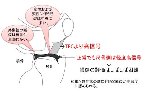 TFCC3