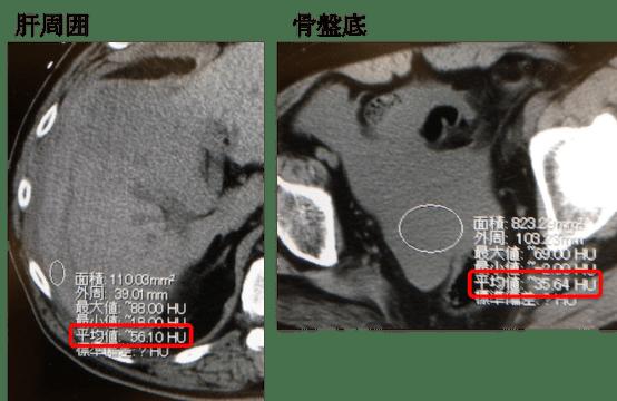 rupture of HCC CT findings3