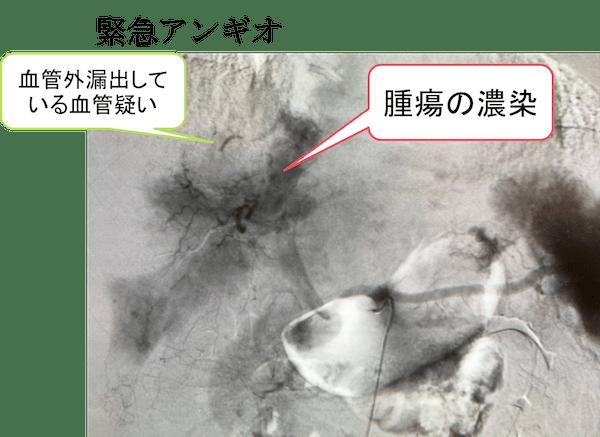rupture of HCC CT findings7