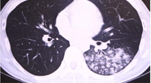 Mycoplasma pneumoniae pneumonia