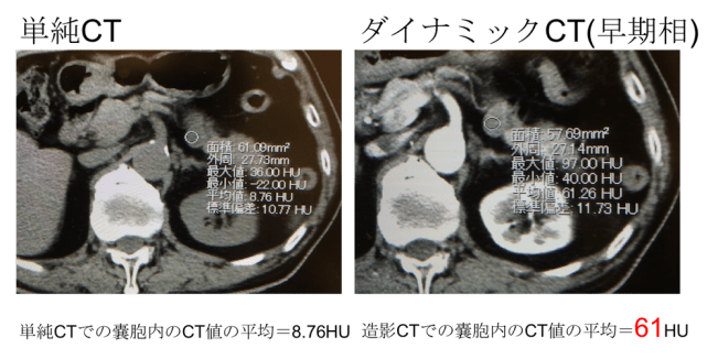 microcystic type of SCN SCT CT MRI findings2