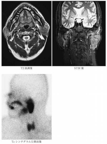 Warthin tumor mri scinti