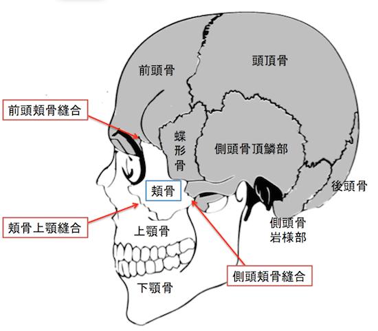 zygomaticomaxillary complex ZMC fracture