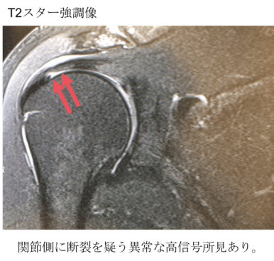 rotator cuff tear mri findings