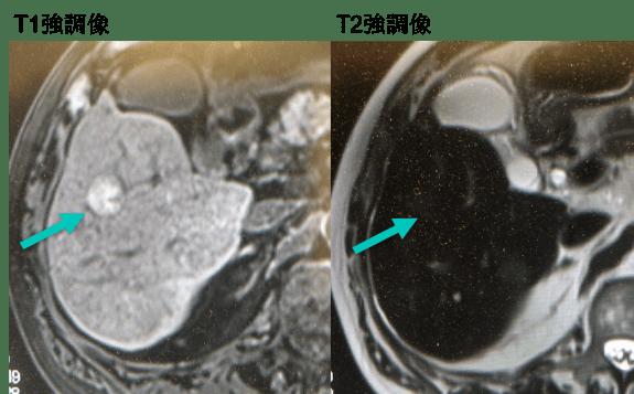 MRI findings post RFA hcc