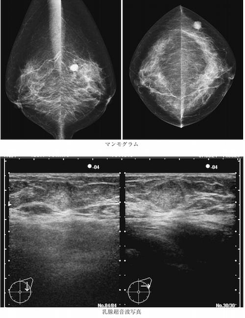 Mucinous carcinoma