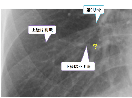 normal anatomy of chest Xray4
