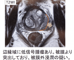 prostate cancer T3a-1