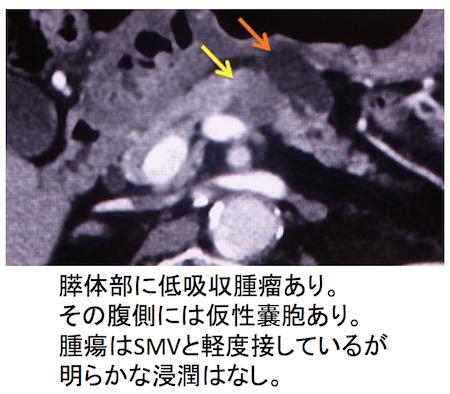 pancreaticcancer