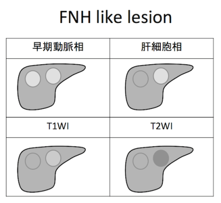 FNH like lesion