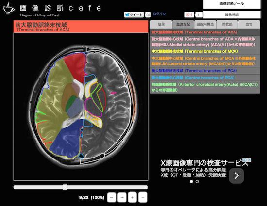 brainMRIanatomy