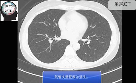 bronchial asthma2