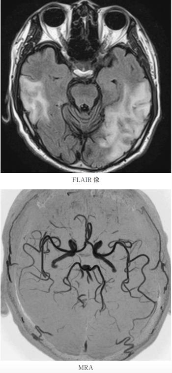 mitochondrial myopathy, encephalopathy, lactic acidosis, and stroke-like episodes