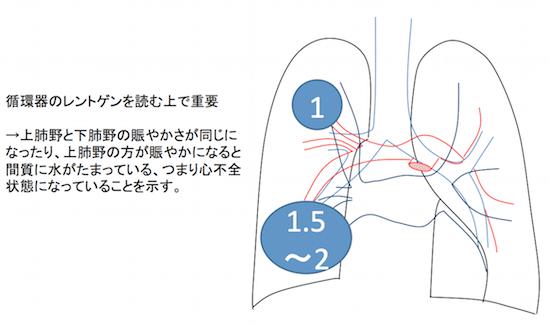 heart failure8