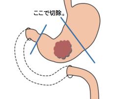Distal gastrectomy
