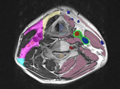 normal anatomy ofcervical MRI