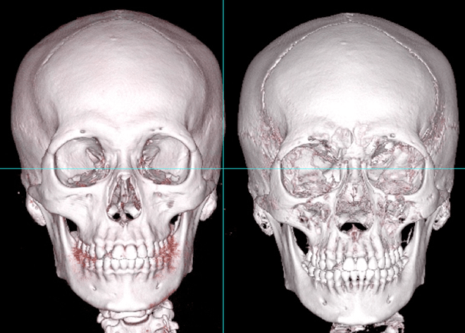 facial bone anatomy