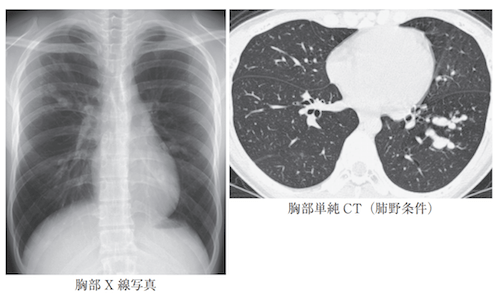 Allergic bronchopulmonary aspergillosis