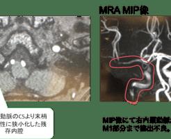 internal carotid artery dissection MRI findings2