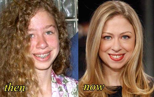 adjacent inages comparing Chelsea Clinton's features before and after plastic surgery