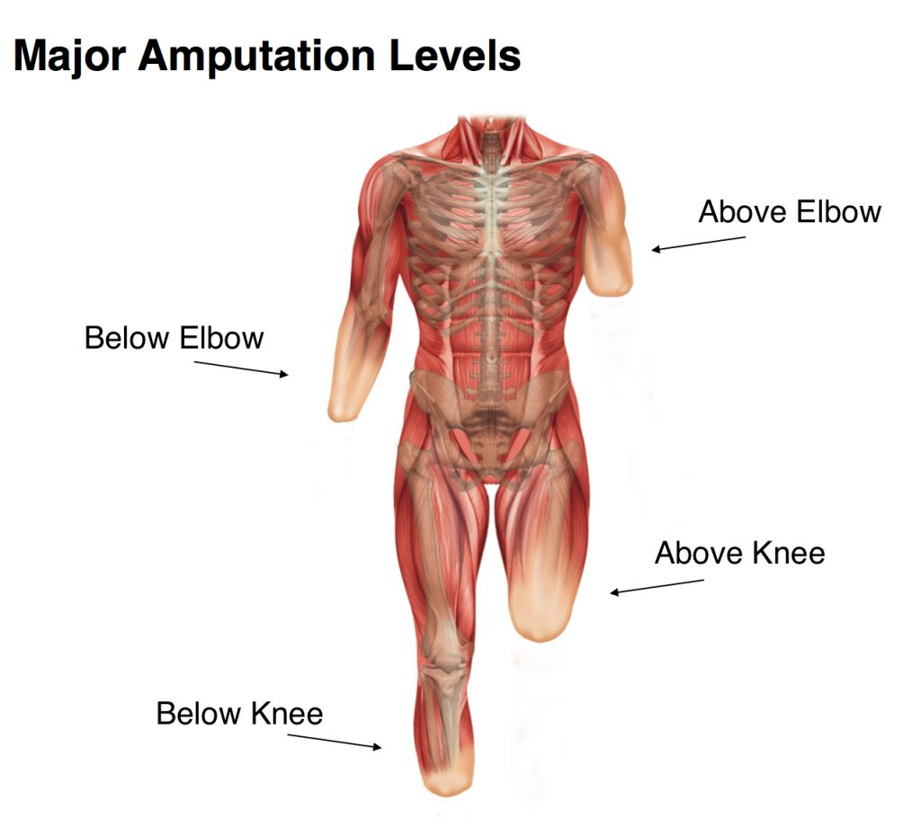 hight resolution of amputation levels guide