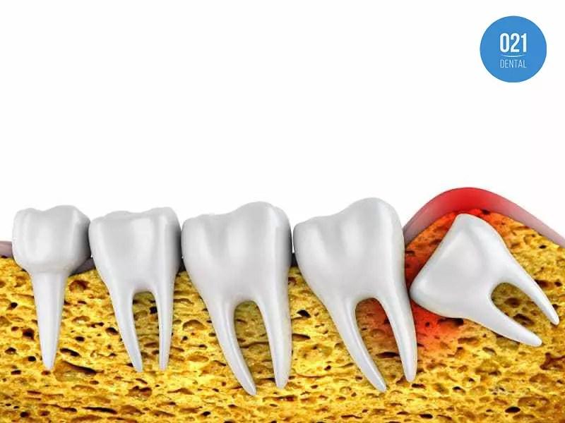 Sintomas do dente do siso nascendo