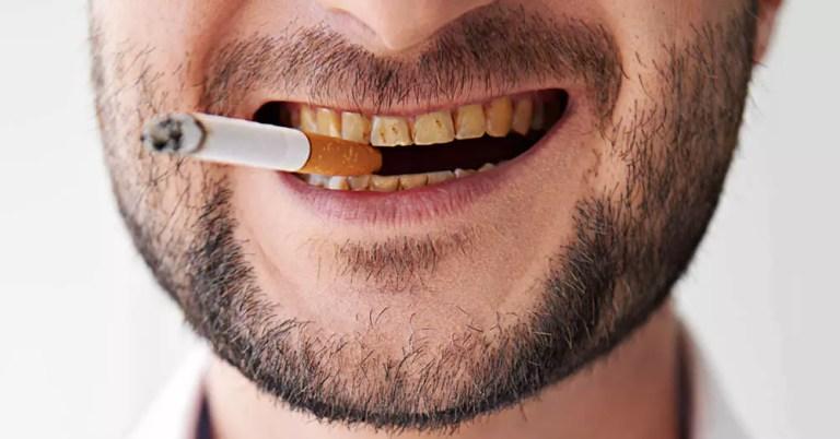 Malefícios do cigarro para sua saúde bucal