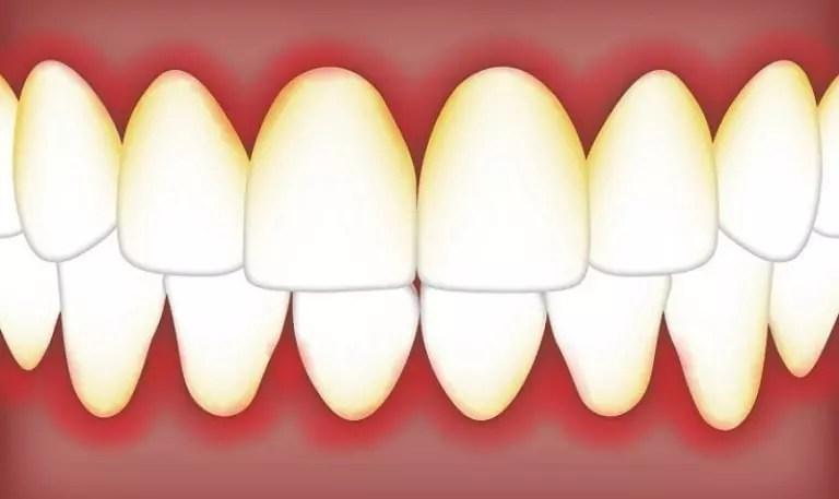 dentes com gengiva inflamada generalizada e periodontia