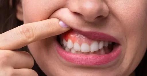 Sinais de Alerta para Dentes e Gengivas