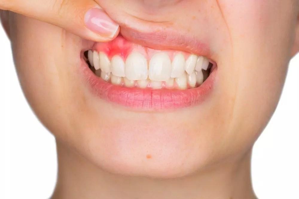 dentes com periodontite