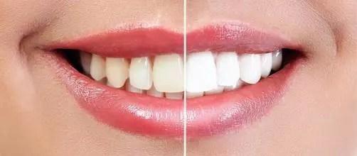 Alimentos e bebidas proibidos logo após o clareamento dental