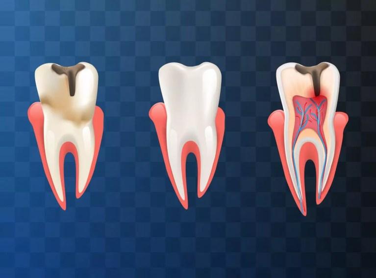 Saiba tudo sobre o tratamento de canal dental