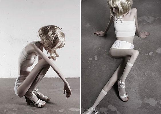 depășirea și pierderea în greutate în recuperarea anorexiei