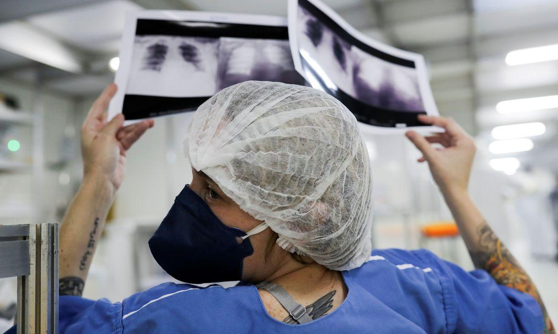 Hospital Sao Paulo CoronaVirus radiografia de torax