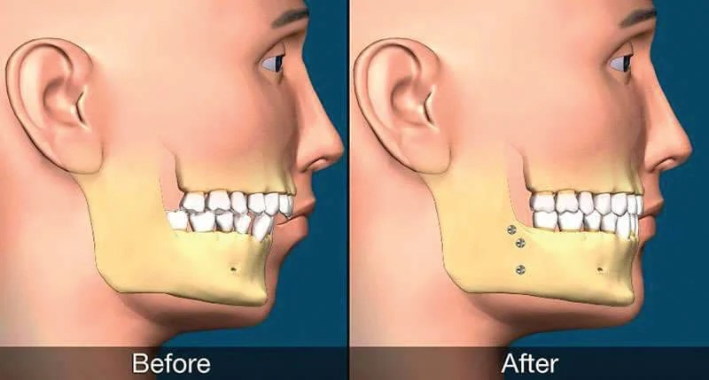 cirurgia-ortognatica-bimaxilar