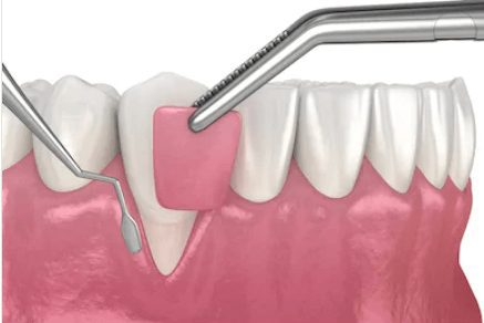 Enxerto-de-gengiva-para-recobrimento-de-raiz-exposta-por-causa-de-sensibilidade-no-dente