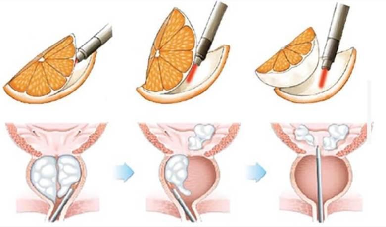 holep-laser-próstata