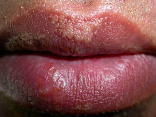 Amžiaus dėmės ant varpos - Kosmetologė